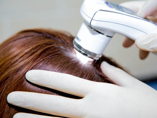 трихолог, врач, выпадение волос, витамины