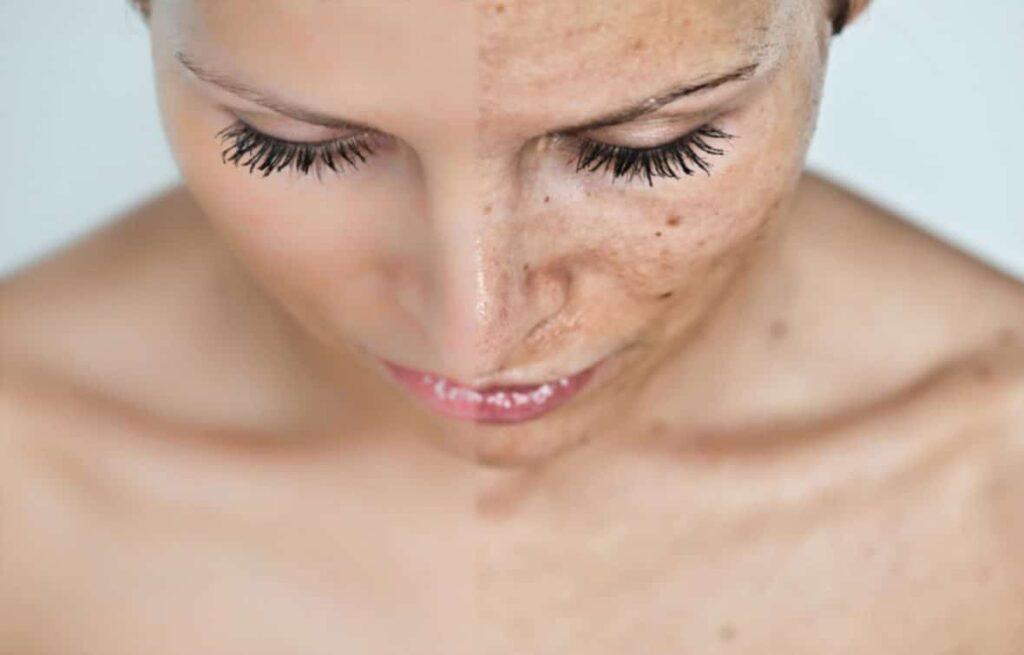 детокс кожи, детоксикация, кожа
